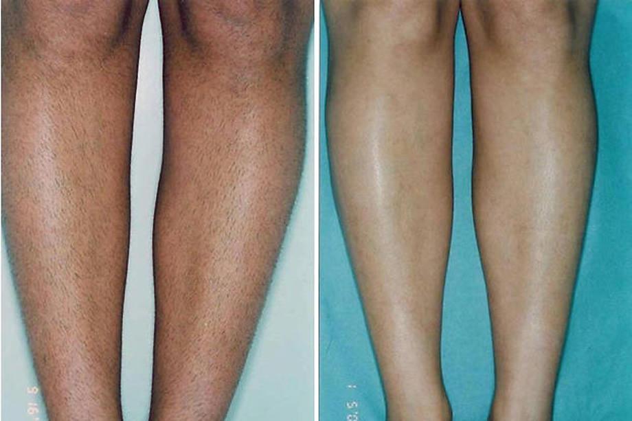 Laser Skin Center & Medical Spa | Laser Hair Removal